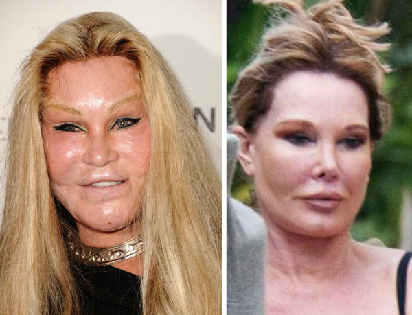10 Worst Celebrity Plastic Surgery Before And After Photos